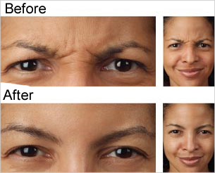 Botox® Before & After Photos, Tampa Ear, Nose And Throat Specialists