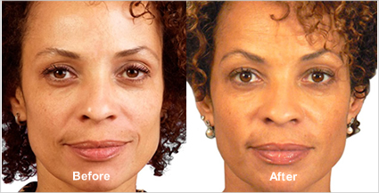 JUVÉDERM® Before & After Photo, Tampa Ear, Nose And Throat Associates